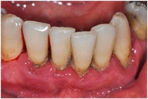 parodontites