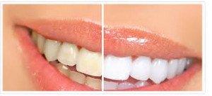blanchissement de dent